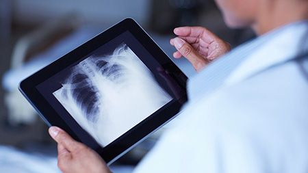 doctor looking at an xray on an ipad